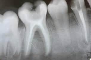 broken roots on teeth picture 7