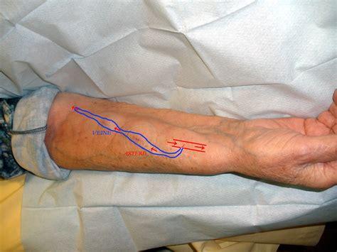 fistula vascular bladder picture 2