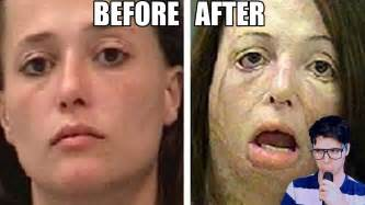 y pill before and after [ics picture 5