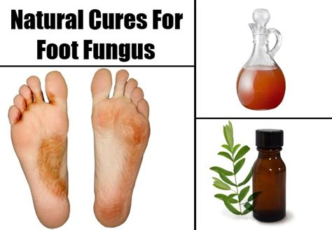 cures for toe nail fungus picture 13