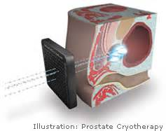 Cryotherapy for prostate cancer picture 10