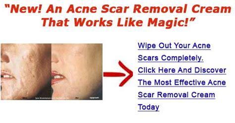 acne scar treatment in mercury drug store picture 4