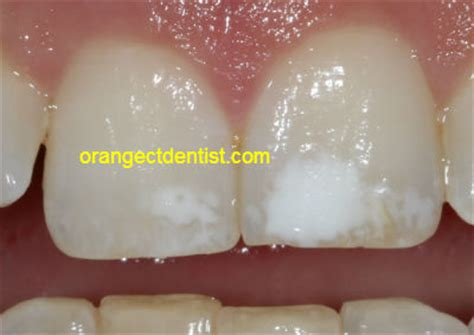 fluoride treatment for teeth picture 13