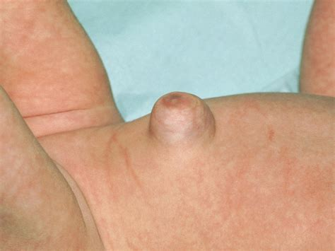 signs of intestinal infections due to herniated navels picture 4
