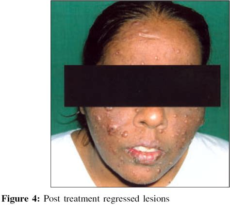 sda cure herpes picture 7