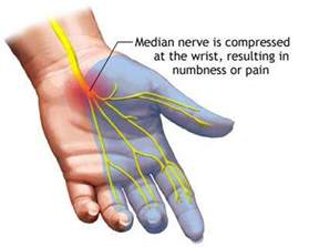 blow out joint pain picture 1