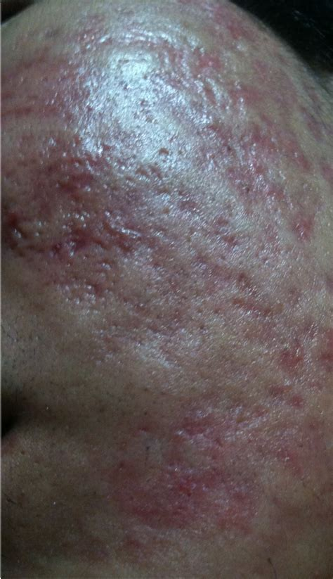 antidepressant cleared acne picture 11