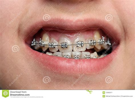 childrens braces for teeth picture 15