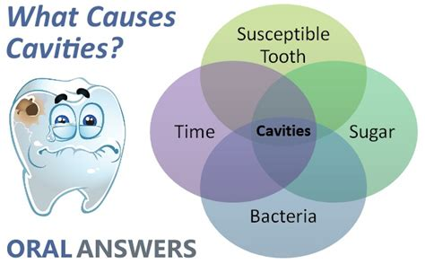 causes of teeth problems picture 14