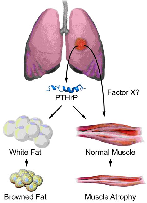 cancer of the muscle picture 18