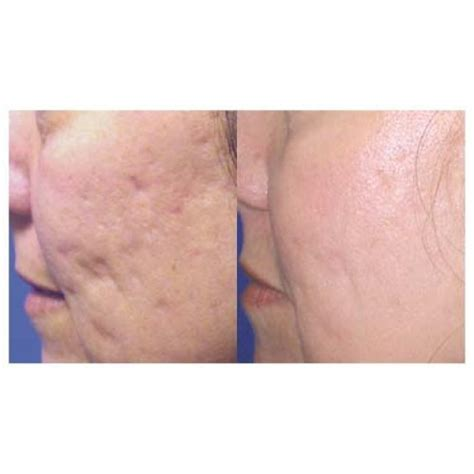 delaware acne and scar treatment md picture 10