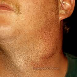 hives and swollen glands picture 1