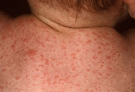 hives and fever picture 2