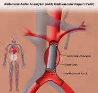aneurysm high blood pressure picture 9