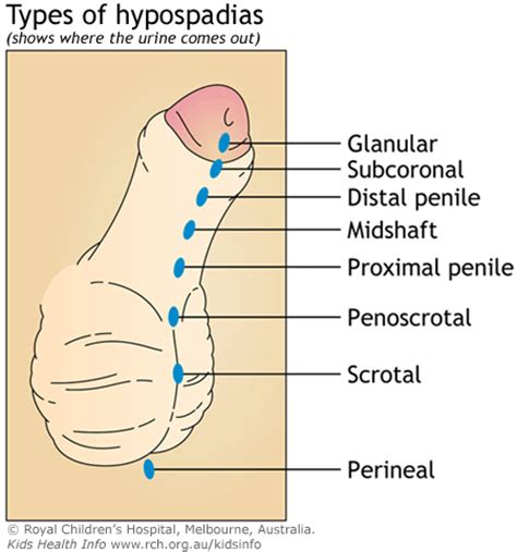 penis + erection stages + gif picture 3
