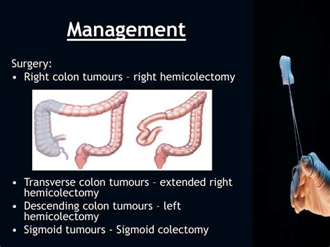 Colon cancer stages picture 10