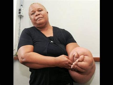 chemtherapy and cellulite picture 11