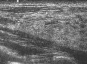 breast echotexture picture 5