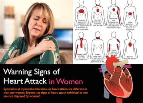 women and heart attacks indigestion picture 15