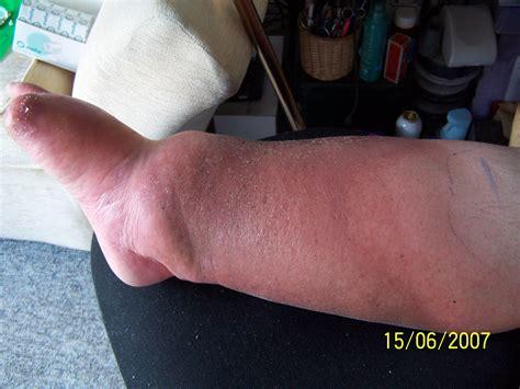 cellulite remedies picture 2