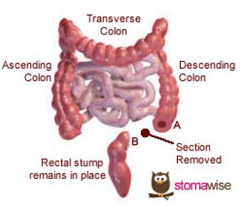 colon prolapse picture 10