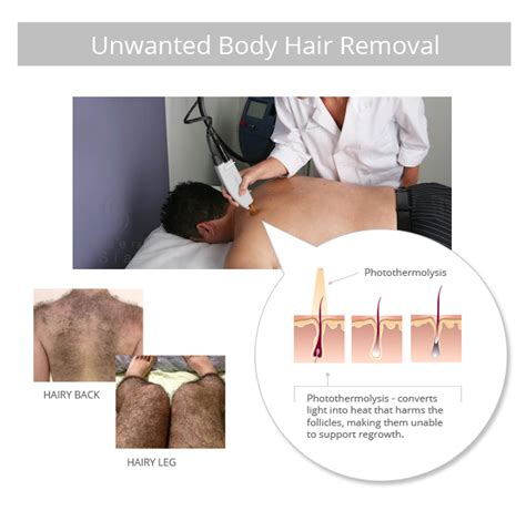 had hair removal picture 7