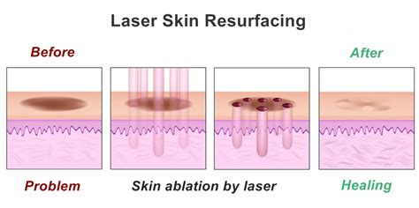 statistics of laser skin surgery picture 10