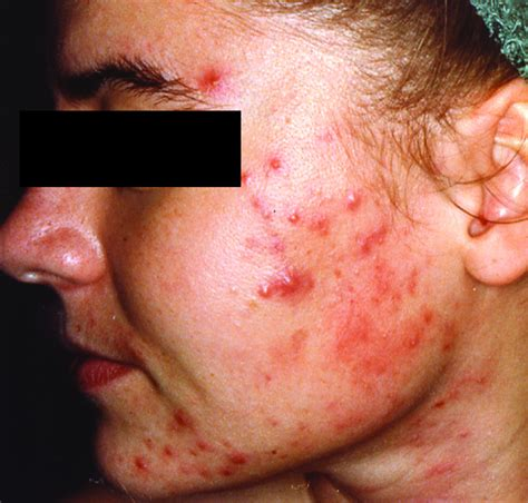 acne help picture 7