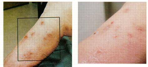 skin conditions agent orange picture 3