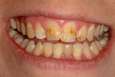 discolored teeth enamel effacia picture 15