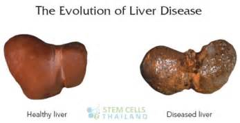 stage 4 liver disease picture 2