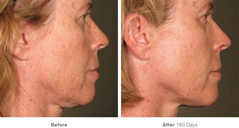an skin tightening real reviews picture 13