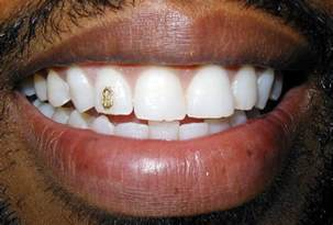 diamond grills for teeth picture 6