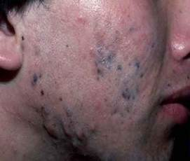 treatment of discoloration from acne picture 1