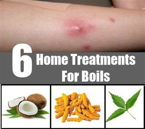 home remedy for boils on your skin picture 8