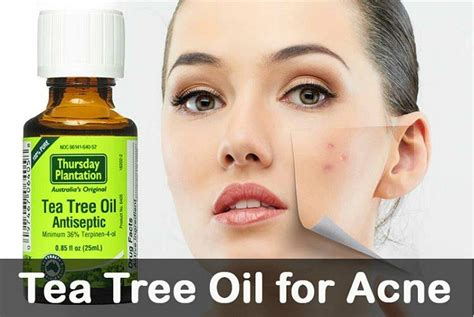 tee tree oil and acne picture 2