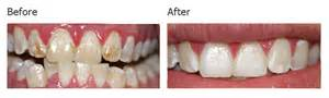 michigan teeth whitening picture 14