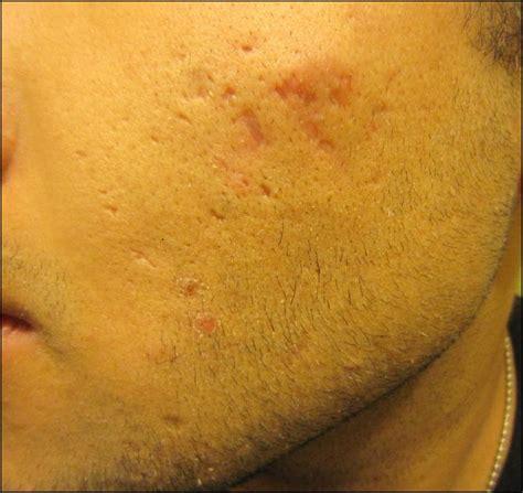 acne scars message board picture 17