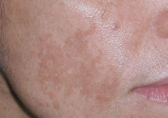 freezing liver spots at home picture 2