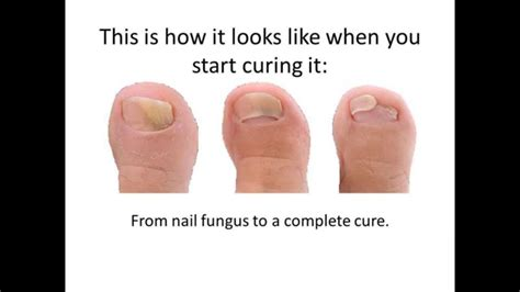 toe nail fungal treatment lasar picture 5