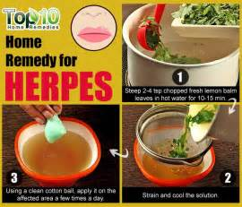 natural pain relievers for herpes picture 5