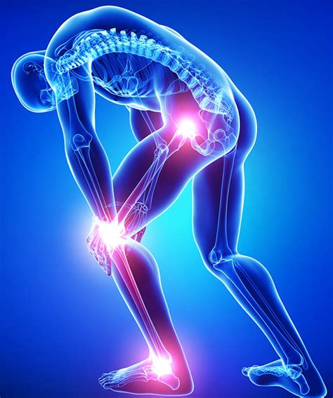are muscle relaxers effective in treating arthritis picture 6
