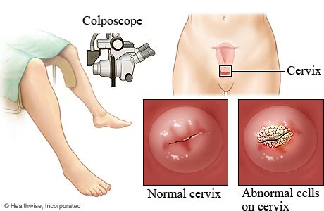 h genital warts pictures picture 3