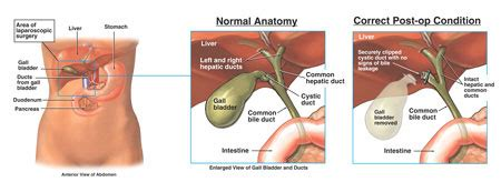 causes of cough after gallbladder surgery picture 8