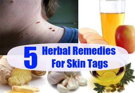 natural remedies for skin tags picture 2