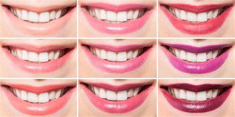 what kind of lip gloss can make your teeth whiter picture 2