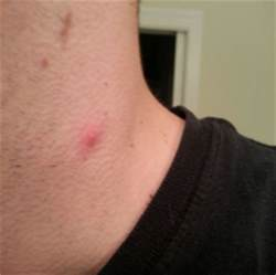 rash that looks like acne picture 3