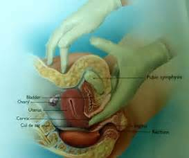removal of diverticula on colon picture 5