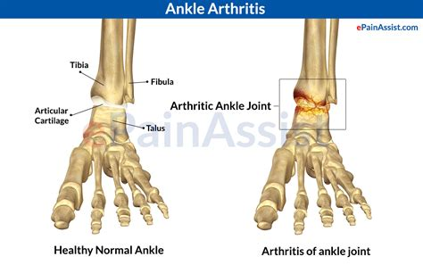 ankle joint pain picture 15