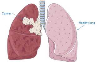 lung and liver cancer picture 1